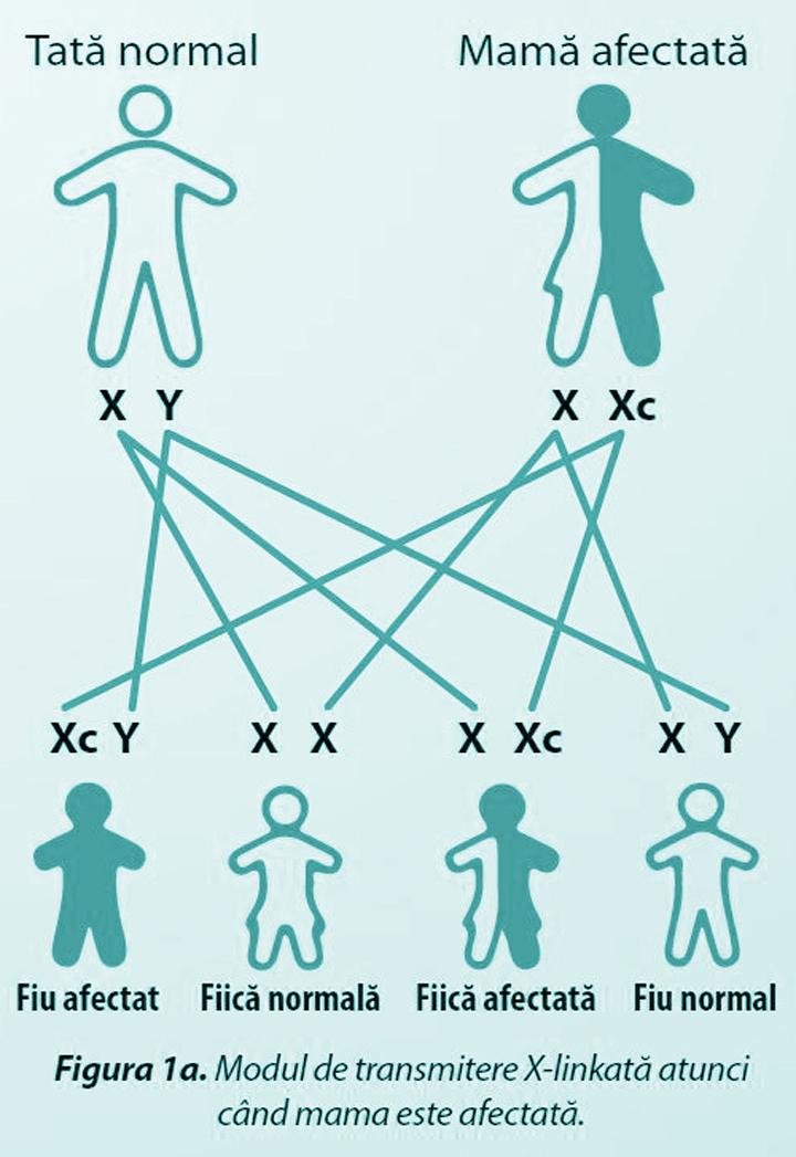 Modul de transmitere X-linkată atunci când mama este afectată.
