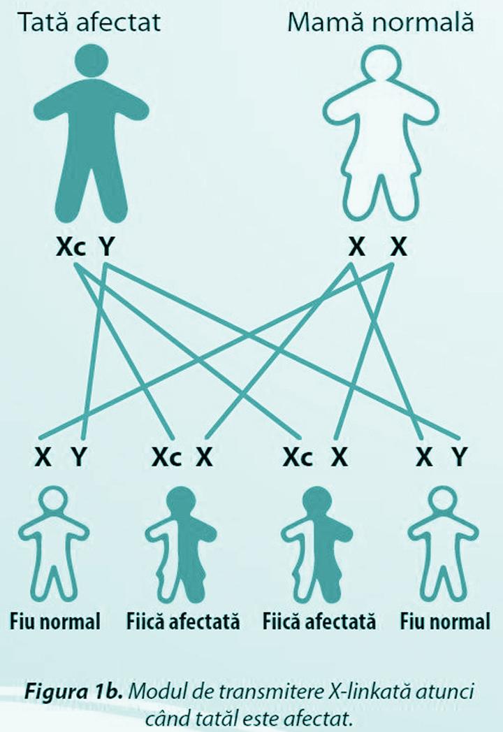 Modul de transmitere X-linkată atunci când tatăl este afectat.
